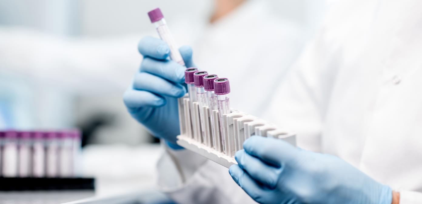 Recherche, manipulation tubes à essais, IStock format slide
