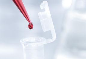 Laboratoire de recherche, pipette rouge, crédit Fotolia