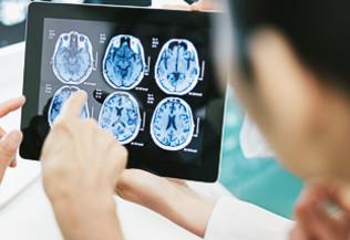 une personne en blouse blanche montre du doigt une radio du crâne affichée sur une tablette